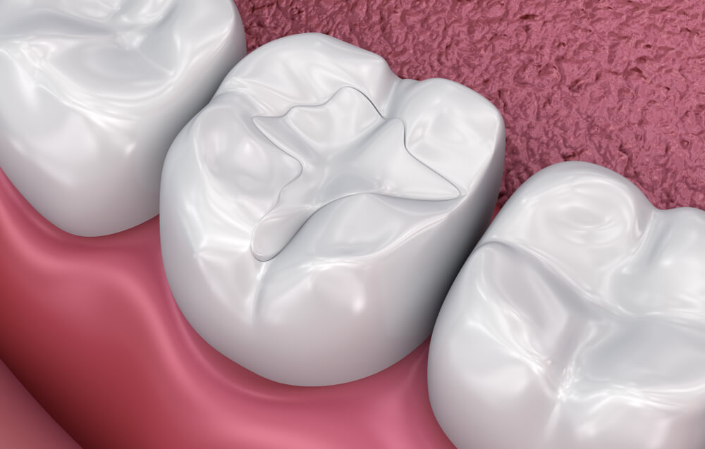 Composite tooth colored fillings showing the concept of Services