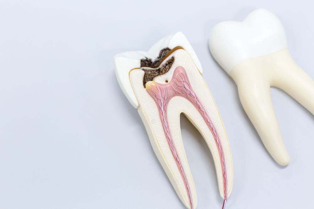 Root canals showing the concept of Services